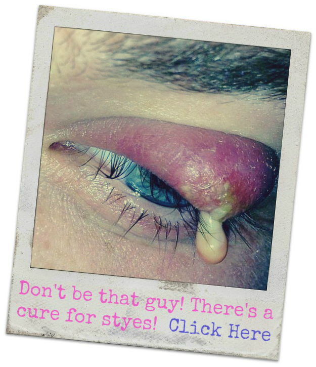 How to get rid of a stye fast?