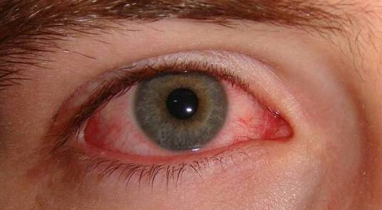 Looking at or reading from a display screen for a prolonged, uninterrupted period of time can cause eye styes, also known as a hordeolum. Which is a inflamed swelling caused by blockage of an eyelid oil gland.
