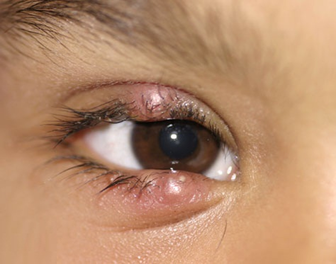 Symptoms - Causes - Prevention (Eye Sty Cyst Boil)