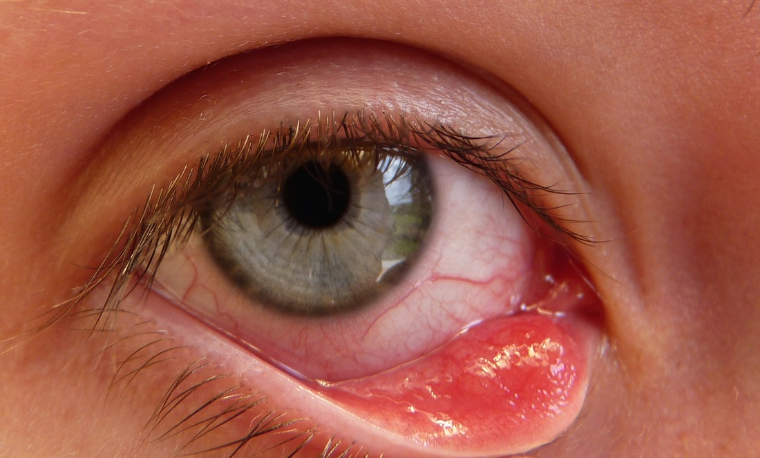 How to Get Rid of a Stye Overnight?