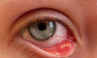 Red painful irritation on the inside of the eyelid from stye.
