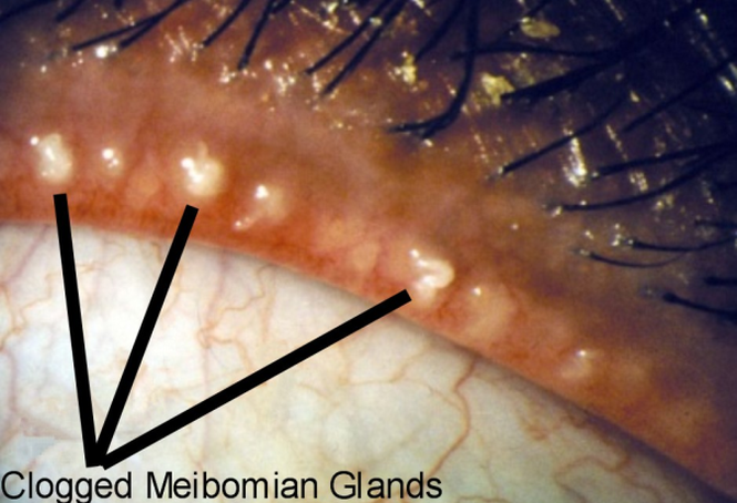 Blocked eyelid oil gland: clogged meibomian glands obstructing the secretion of oil resulting in a stye.