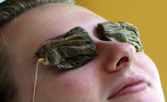 Warm tea bags containing tea leaves help releive a eye stye or hordeolum on the eyelid