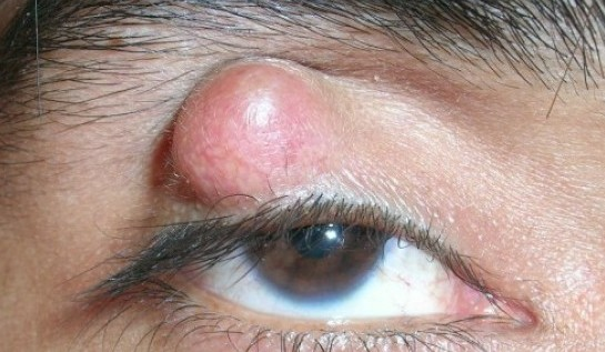 What is a chalazion? Is a chalazion a stye? What does a Chalazion look like?