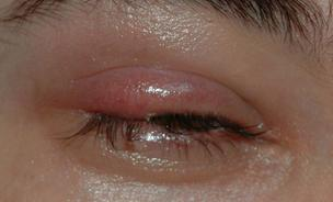 Does a stye cause redness and swelling? Does a stye look like a whitehead pimple?