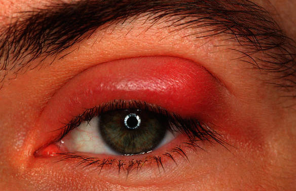 Hordeolum Image of swollen eyelid due to a stye infection in upper eyelid.